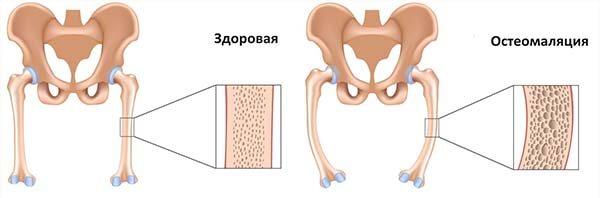 остеомаляція