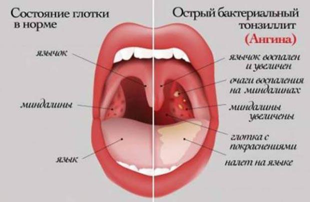Гострий бактеріальний тонзиліт