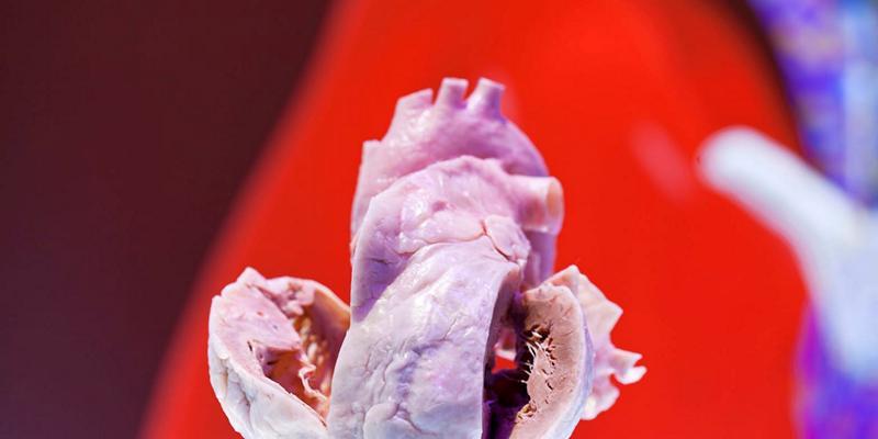 Гостра інфаркт міокарда