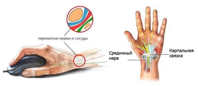 Від невралгії німіє права рука причини