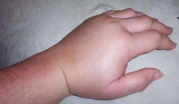 набряк пальців