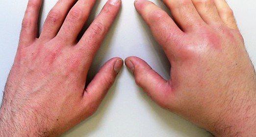 набряк руки у дорослого при алергії