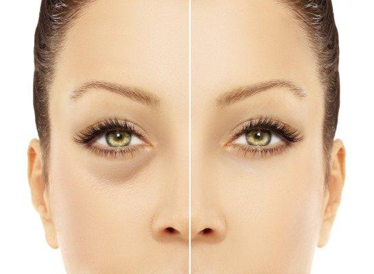 Набряки під очима вранці. Причини і лікування у жінок і чоловіків, ранкові синці, почервоніння, мішки на вилицях