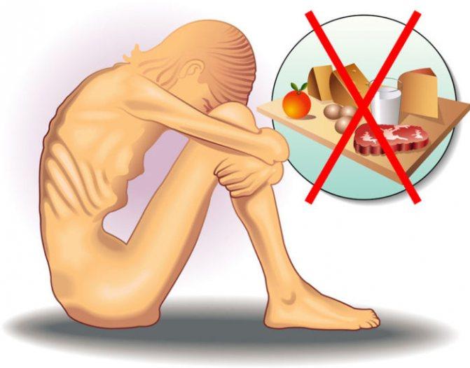 Відмовляючись від їжі і виснажуючи себе фізично, хворий на анорексію може втрачати від 20 до 50% своєї ваги.