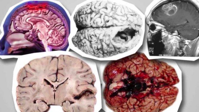 Звідки береться кіста в головному мозком