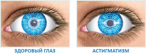 Відмінності здорового очі и хворого астигматизмом