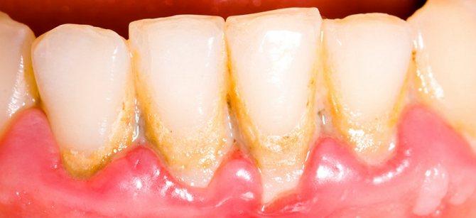 відкладення на зубах