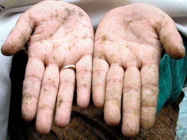 Отруєння отрутами через шкіру