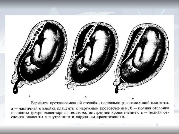відторгнення плаценти
