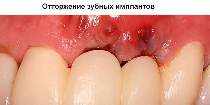 Відторгнення зубних імплантів