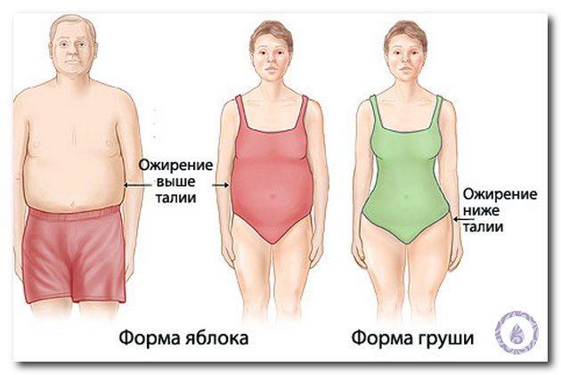 ожиріння 2 ступеня у жінок