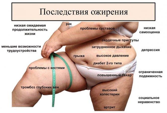 ожиріння і спосіб життя