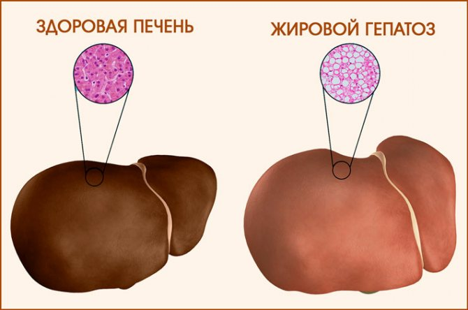 Ожиріння печінкі