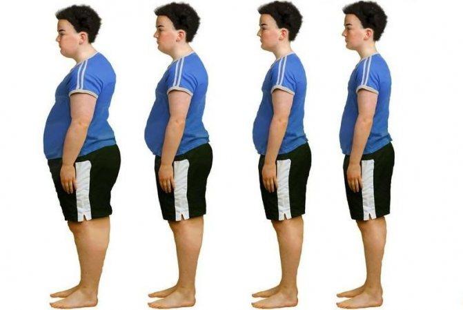 Ожиріння у дітей класифікація