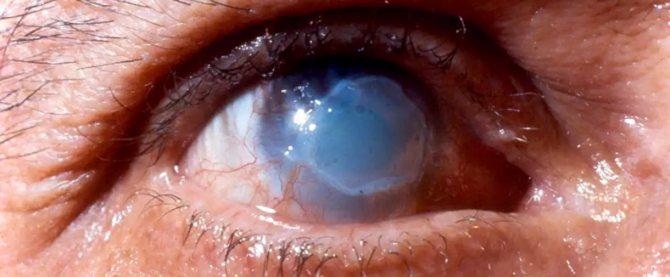 опіки очей