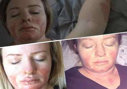 опіки обличчя, шиї, грудної клітки