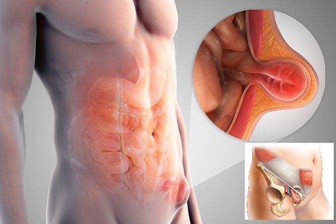 Пахова грижа у чоловіків класифікація симптоми лікування і профілактика