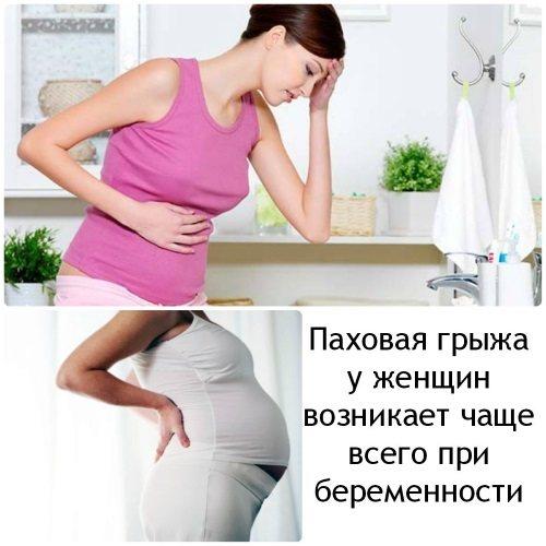 Пахова грижа у жінок: симптоми, лікування без операції, народними засобами. Операція з видалення, наслідки