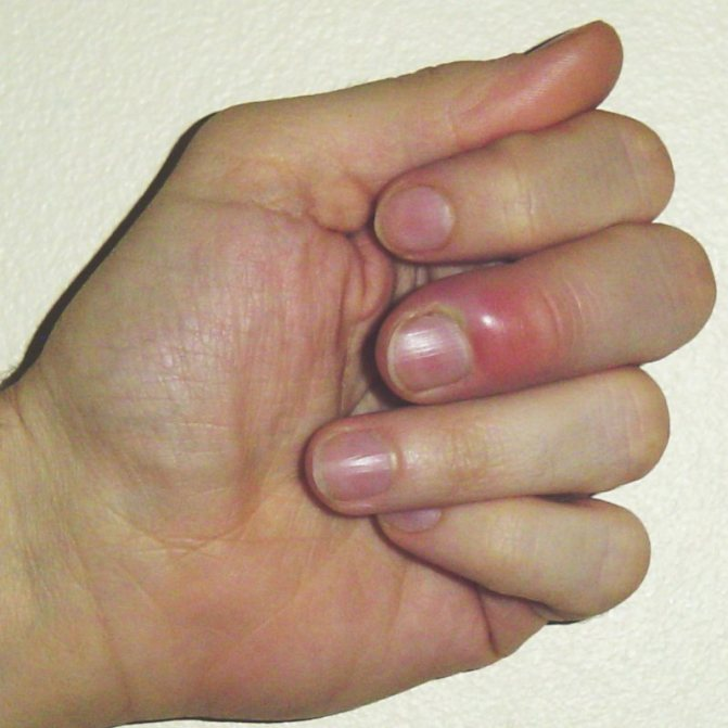 Панариций пальця кисті код МКБ 10