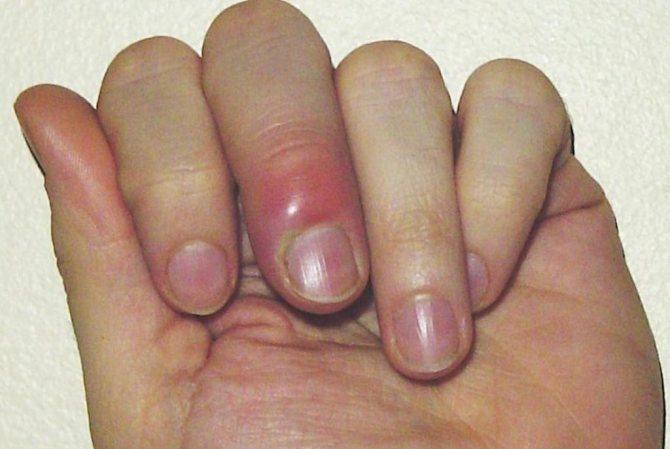 Панариций підшкірний: фото, причини і симптоми, методи лікування