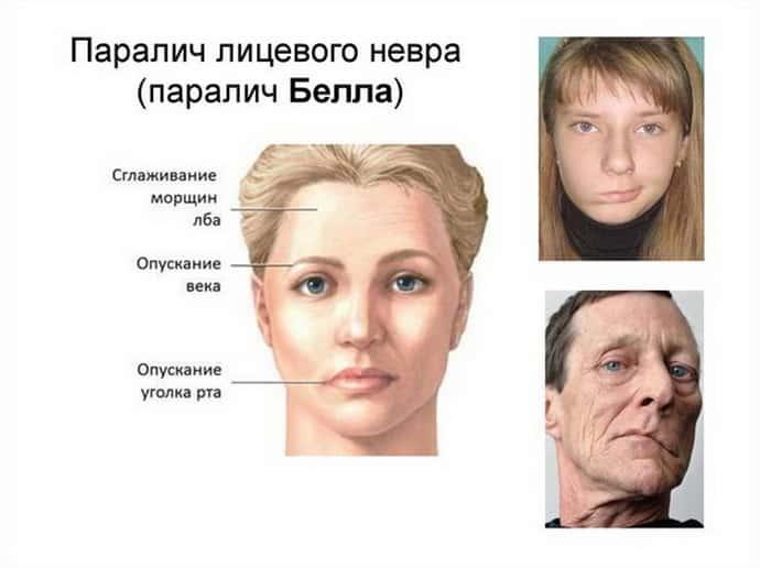 Параліч Белла, патологія, яка зачіпає область лицьового нерва