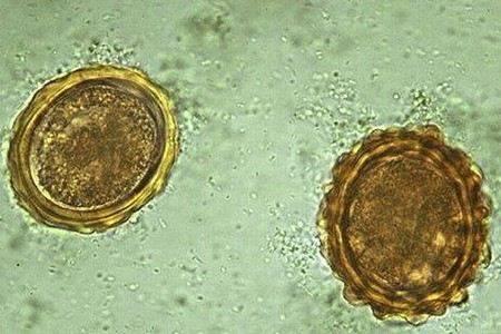 Паразити в організмі людини: як вони відкладають яйця