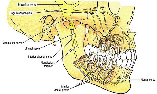 Парестезія після видалення зуба може виникати як через здавлювання нерва через розвиненого набряку, так і через пошкодження нерва хірургічними інструментами.