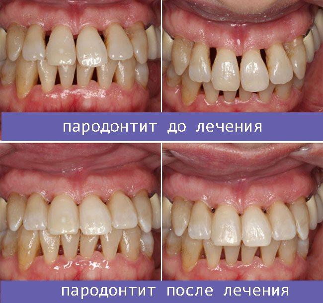 пародонтит до і після лікування