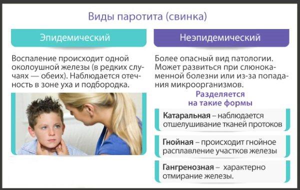 Паротит у дорослих. Симптоми і лікування, фото, як передається, клінічні рекомендації