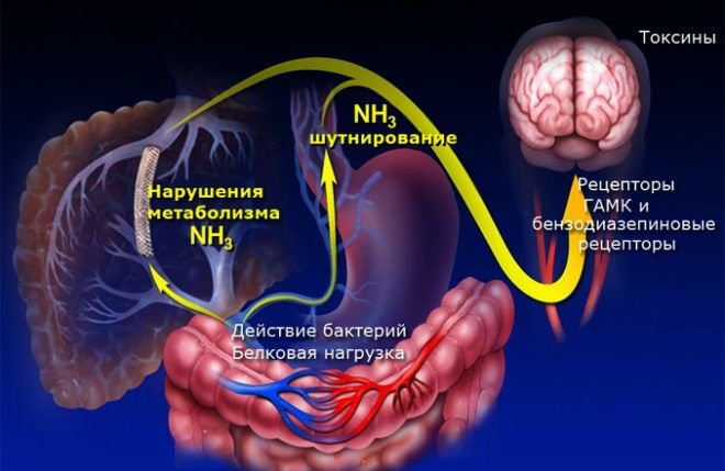 Патогенез печінкової енцфалопатіі