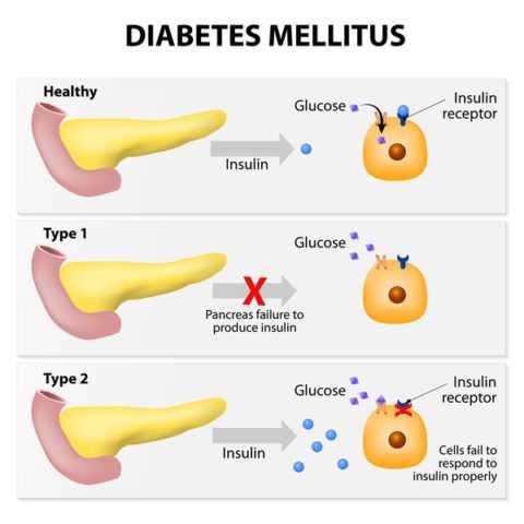 Патогенез розвитку двох основних видів цукрового діабету.