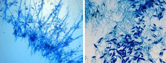 патогенні грибки Microsporum