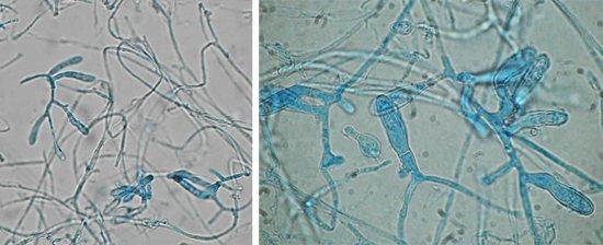 патогенні грибки