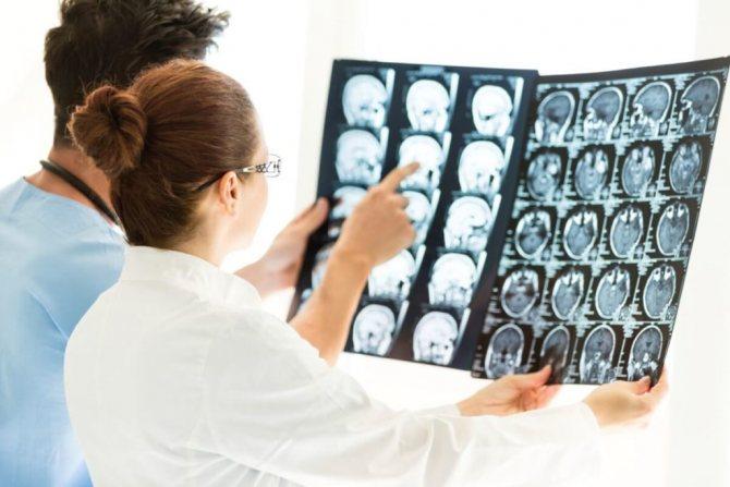 Патологічна зміна багатьох структур головного мозку