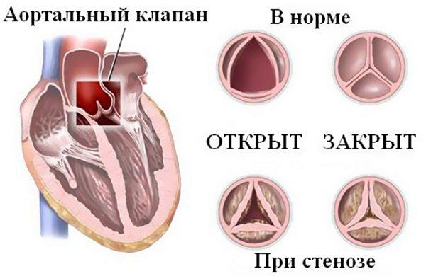Патологія серцево клапанів