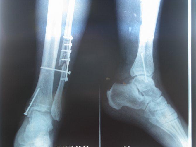 Перелом гомілкової кістки без зміщення