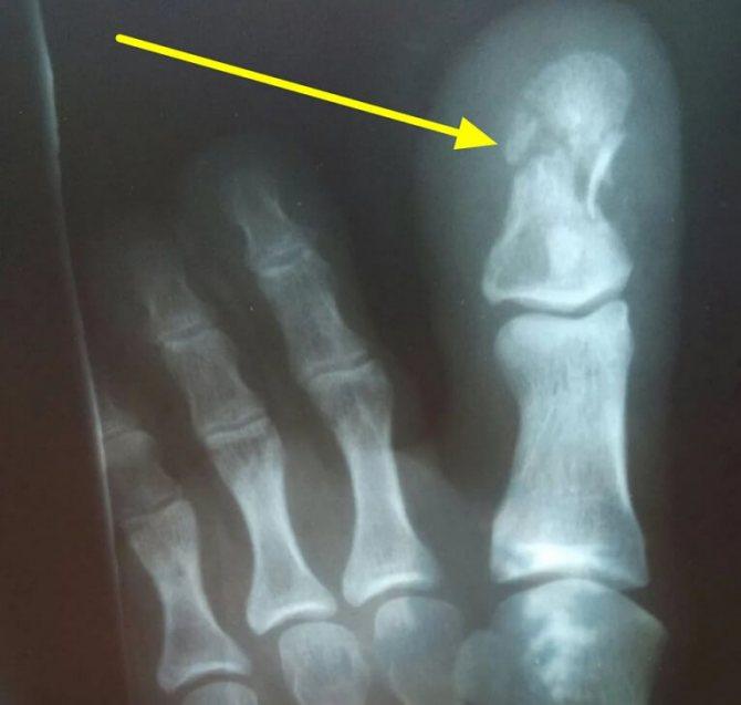 Перелом фаланги пальця