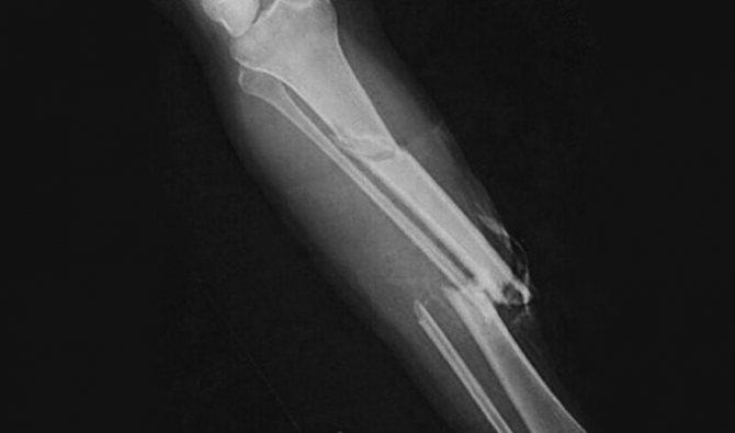 перелом гомілки на рентгені