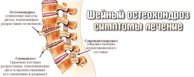 Перелом малогомілкової кістки без зміщення