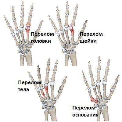 Перелом п'ясткової кісткі зі зміщенням та без: симптоми, лікування ...