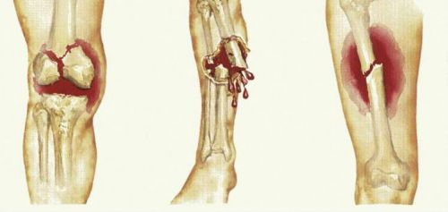 Переломи кісток ноги