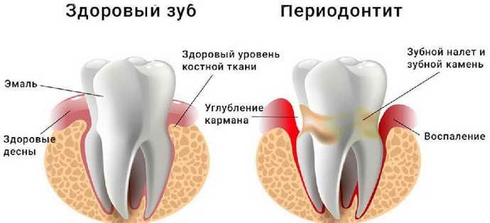 Періодонтит як причина кісти зуба