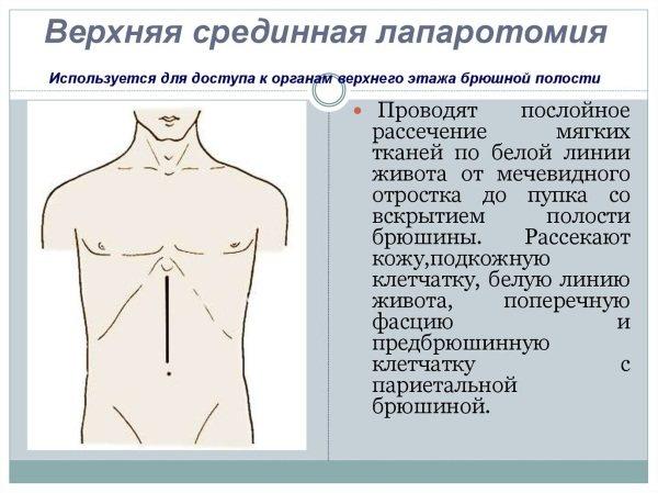 Перитоніт. Симптоми, причини і лікування у дорослих жінок, чоловіків