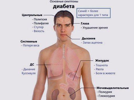 Перші симптоми діабету у чоловіків