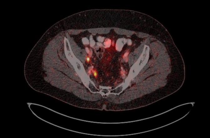 ПЕТ-КТ зображення хворого М. з ураженням тазових лімфовузлів