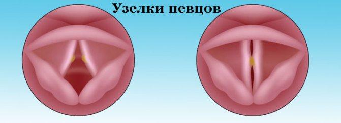 Співочі вузлики на голосових зв'язках Симптоми и лікування