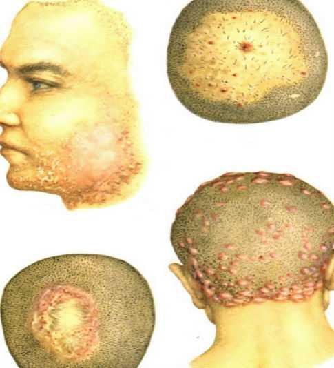 піодермія голови
