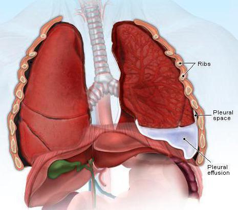 плевральна порожнина легенів