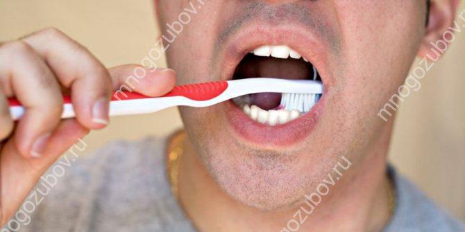 Погана гігієна призводить до захворювань зубів