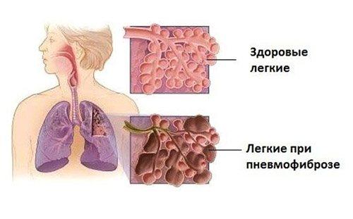 пневмофіброз легких